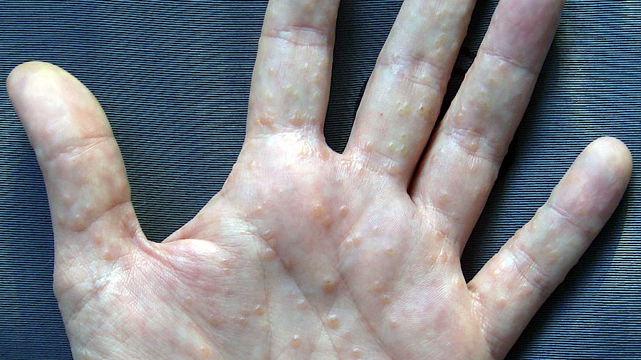 csm hand Dyshidrosis wiki inwe ccbysa30 54ab3f6832 - Những điều chưa biết về bệnh tổ đỉa