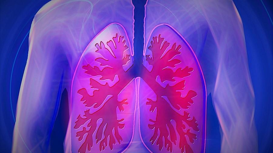 Dreifachzucker Gegen Lungenentzundung Apotheke Adhoc