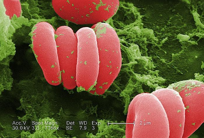 Neue Warnung vor Medikamenten: Epoetine können heftige Hautreaktionen hervorrufen