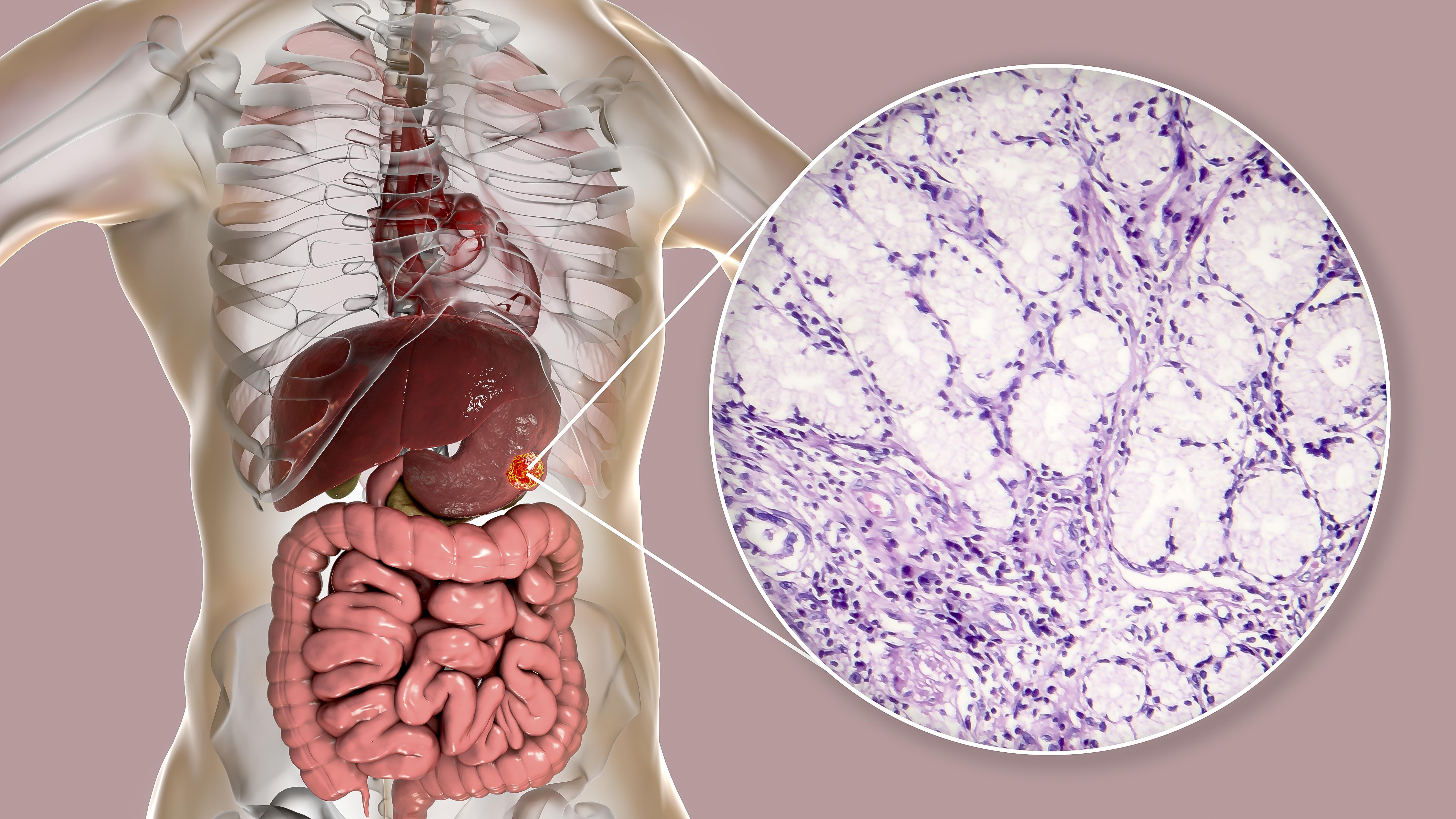 Gewichtsverlust Magenkrebs