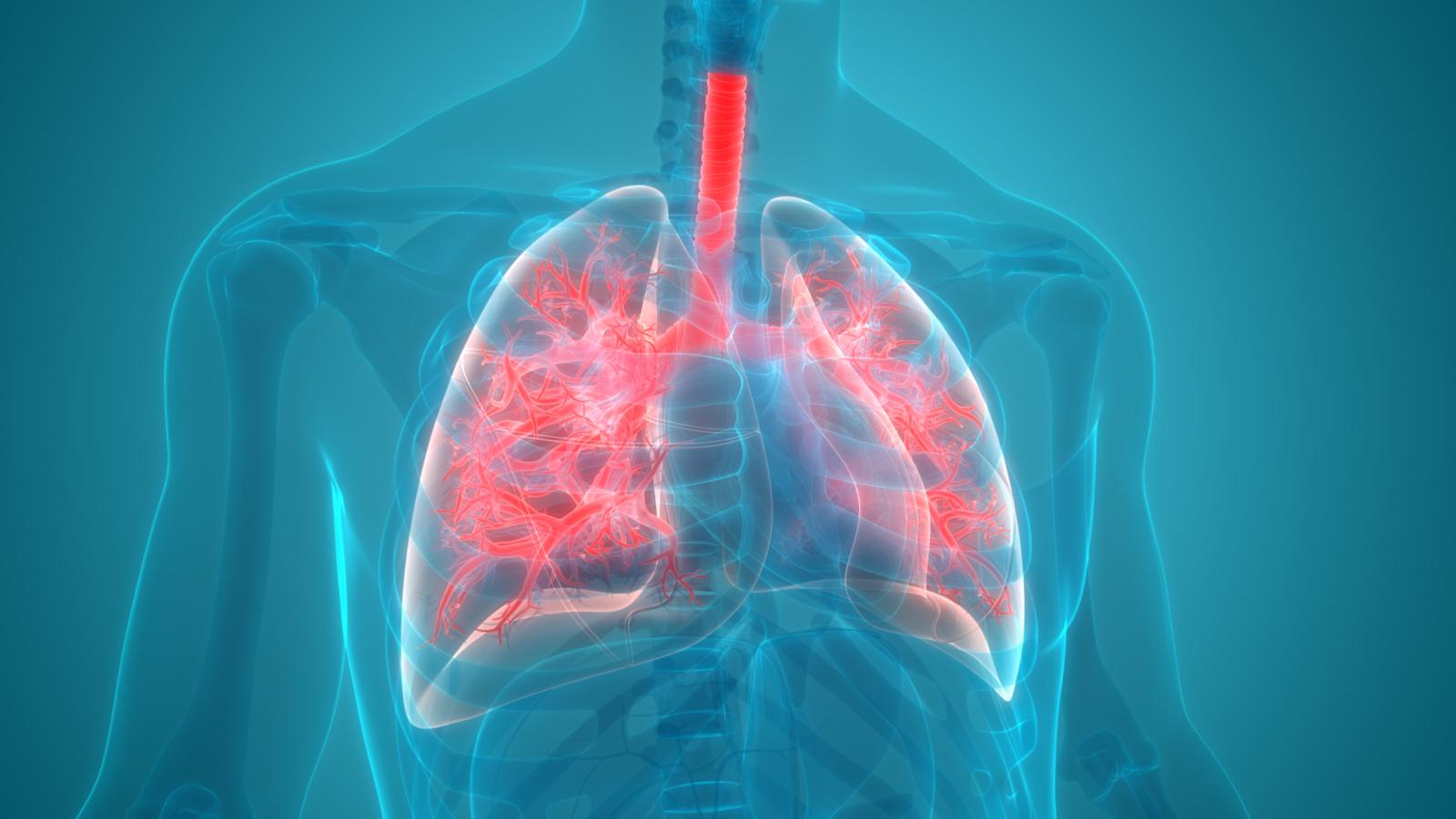 Pneumonie Gefahrliche Lungeninfektion Apotheke Adhoc